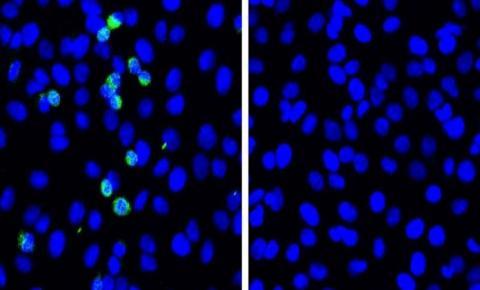 Japoneses identificam proteína que impede replicação da Covid