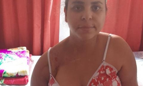 Jovem precisa arrecadar R$ 40 mil fazer cirurgia e recuperar movimentos do braço
